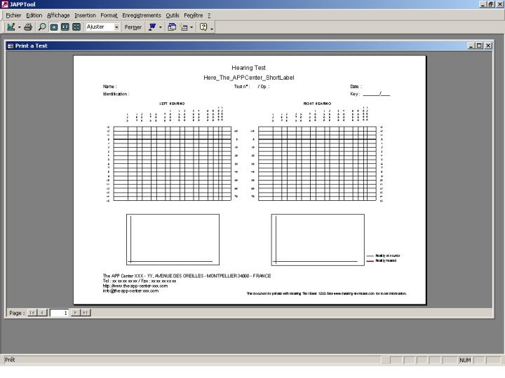 Print of an empty test grid in Hearing Test Base